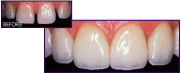Dental Crowns Flushing NY